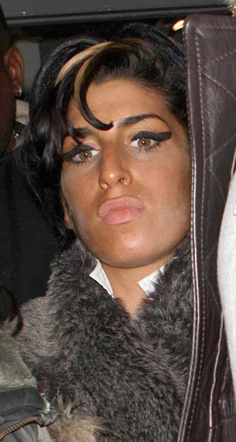 Next Stop For Amy Winehouse: Jersey Shore (Or So Says Her Diarrhea-esque Skin)