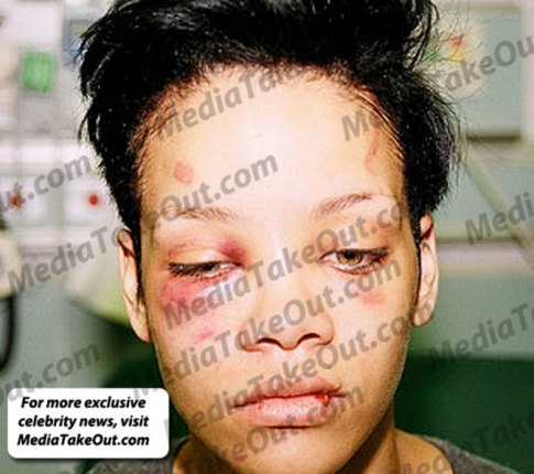 New Photos Of Rihanna From When Chris Brown Beat Her...Yikes